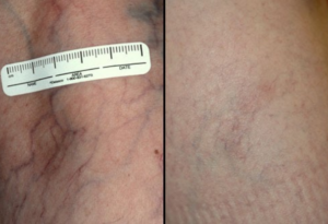Laser-and-Light-Therapy-Before-and-After-300x205-1