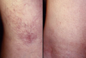 Sclerotherapy-Before-and-After-300x202-1