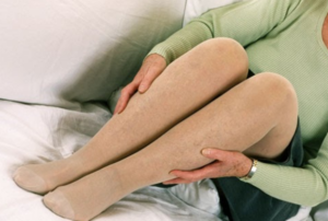 Varicose-Vein-Prevention-Support-Stockings-300x202-1