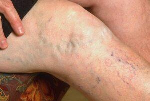 Varicose-Vein-Symptoms-300x203