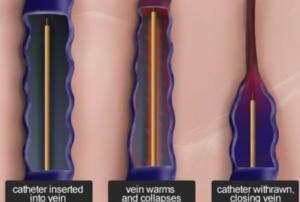 Varicose-Vein-Treatments-Radiofrequency-Ablation-300x202-1