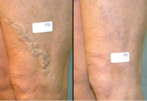 Varicose-Vein-before-and-after-300x205-1